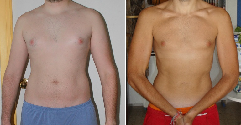 weight loss broad shoulders chance